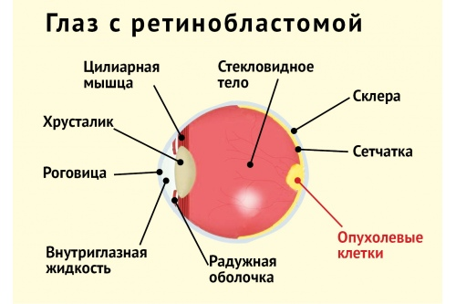 Ретинобластома: найти и обезвредить