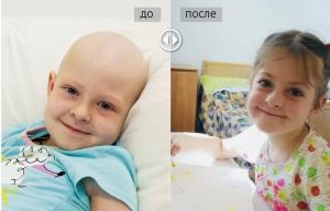 Саша Болотина, до и после