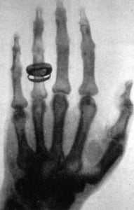 Снимок кисти руки в рентгеновских лучах. 1896 г.